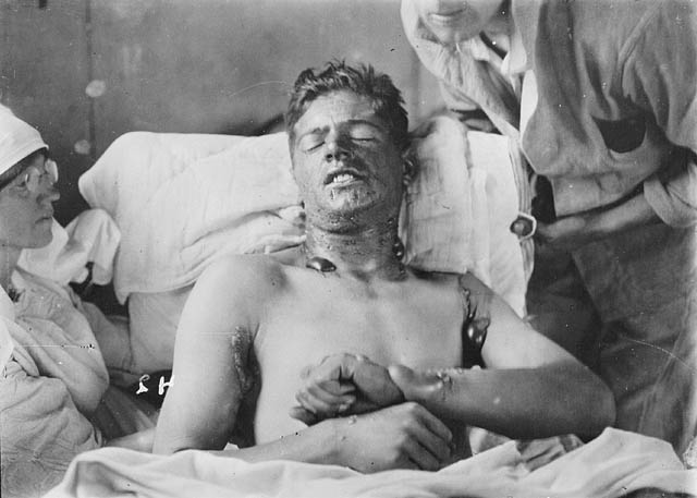 A Canadian soldier with mustard gas burns, ca. 1917-1918. Credit: Library and Archives Canada