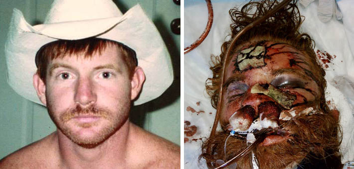 Before and after photos illustrate extent of Thomas' injuries.