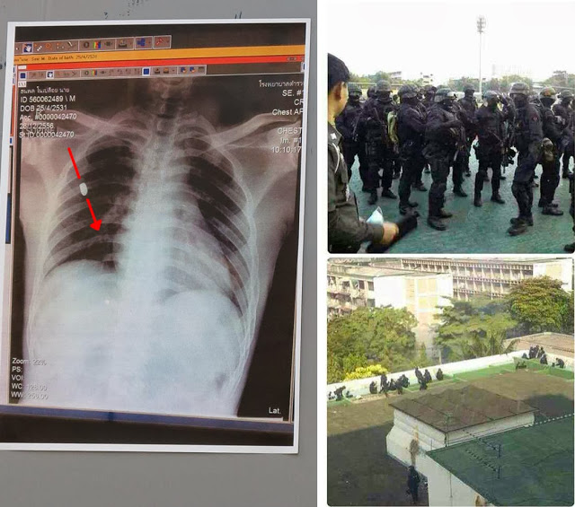 Image: It is now confirmed by the regime itself that the heavily armed gunmen pictured to the right were police. The x-ray to the left is that of Police Sergeant Major Narong Pitisit, confirmed to have been killed by a bullet fired from above. While the regime and its busy propagandists have made great efforts to blame the protesters for his death, it is now clear that he was killed by the regime's own gunmen.