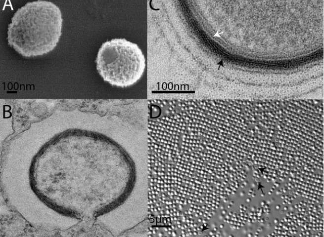 Imaging of Mollivirus particles. (A) Scanning electron microscopy of two isolated particles showing the apex structure. (B) Transmission electron microscopy (TEM) imaging of an ultrathin section of an open particle after fusion of its internal lipid membrane with that of a phagosome. (C) Enlarged view of the viral tegument of a Mollivirus particle highlighting the layer made of a mesh of fibrils (black arrow), resembling Pandoraviruses' intermediate layer, and the underneath internal membrane (white arrow). Three ∼25-nm interspaced rings are visible around the mature particle. (D) Light microscopy (Nomarski optics 63×) imaging of a lawn of Mollivirus particles, some of them (black arrow) exhibiting a depression at the apex. Credit: (c) 2015 PNAS, doi: 10.1073/pnas.1510795112 Read more at: http://phys.org/news/2015-09-frankenvirus-emerges-siberia-frozen-wasteland.html#jCp