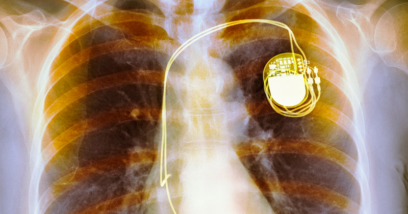 Nearly Half a Million Pacemakers Vulnerable to Hacking