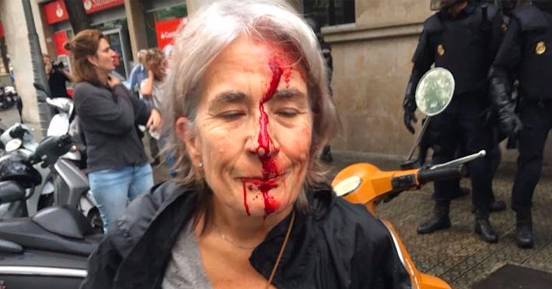 Photos Of Police Beating Catalans 'Fake News': Spanish Foreign Minister