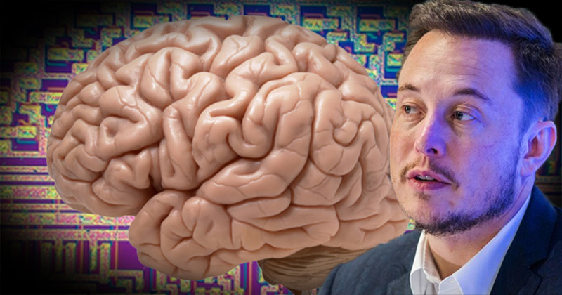 Elon Musk's Brain Interface Company Neuralink To Make Big Announcement