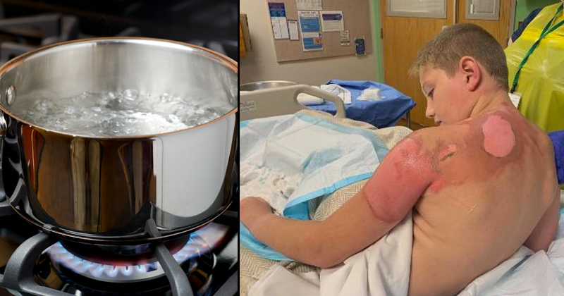 Child Suffers Third-Degree Burns in Dangerous Internet Trend: The Hot Water Challenge