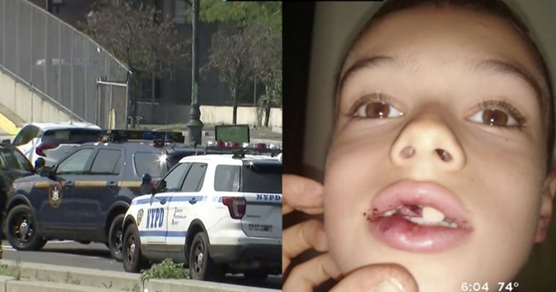 Homeless Man Knocks Teeth Out Of 7-Year-Old Boy In Random Attack