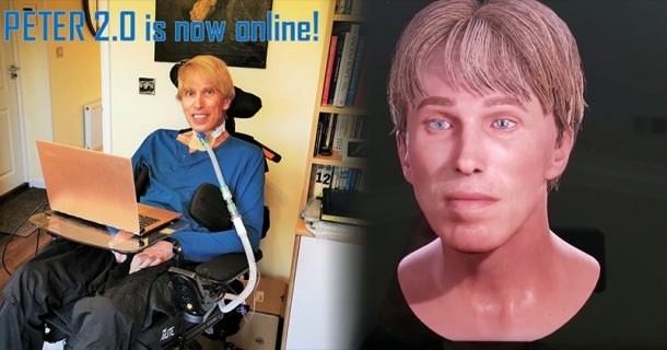 """Terminally-Ill Doctor Becomes """"World's First Full Cyborg"""""""
