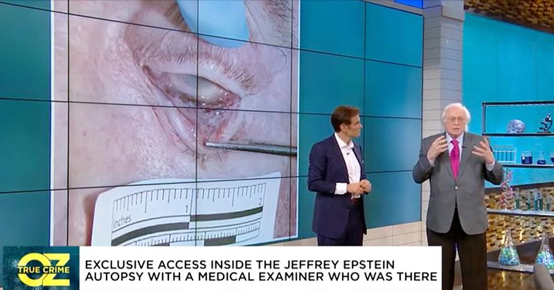 Forensic Pathologist To Dr. Oz: Epstein's Burst Capillaries Point To Murder