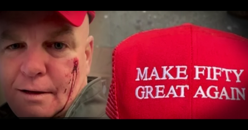 Trump Hater Mistakes Red Cap For MAGA Hat, Punctures Ex-NYPD Cop's Face