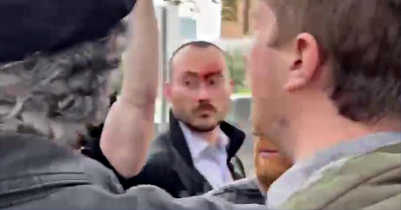 EXCLUSIVE PHOTOS: Reporters Attacked By Mob During Bernie Sanders Rally