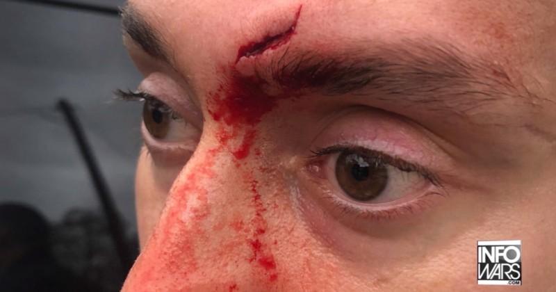 Journalists Attacked by Violent Bernie Bros in Austin, Texas