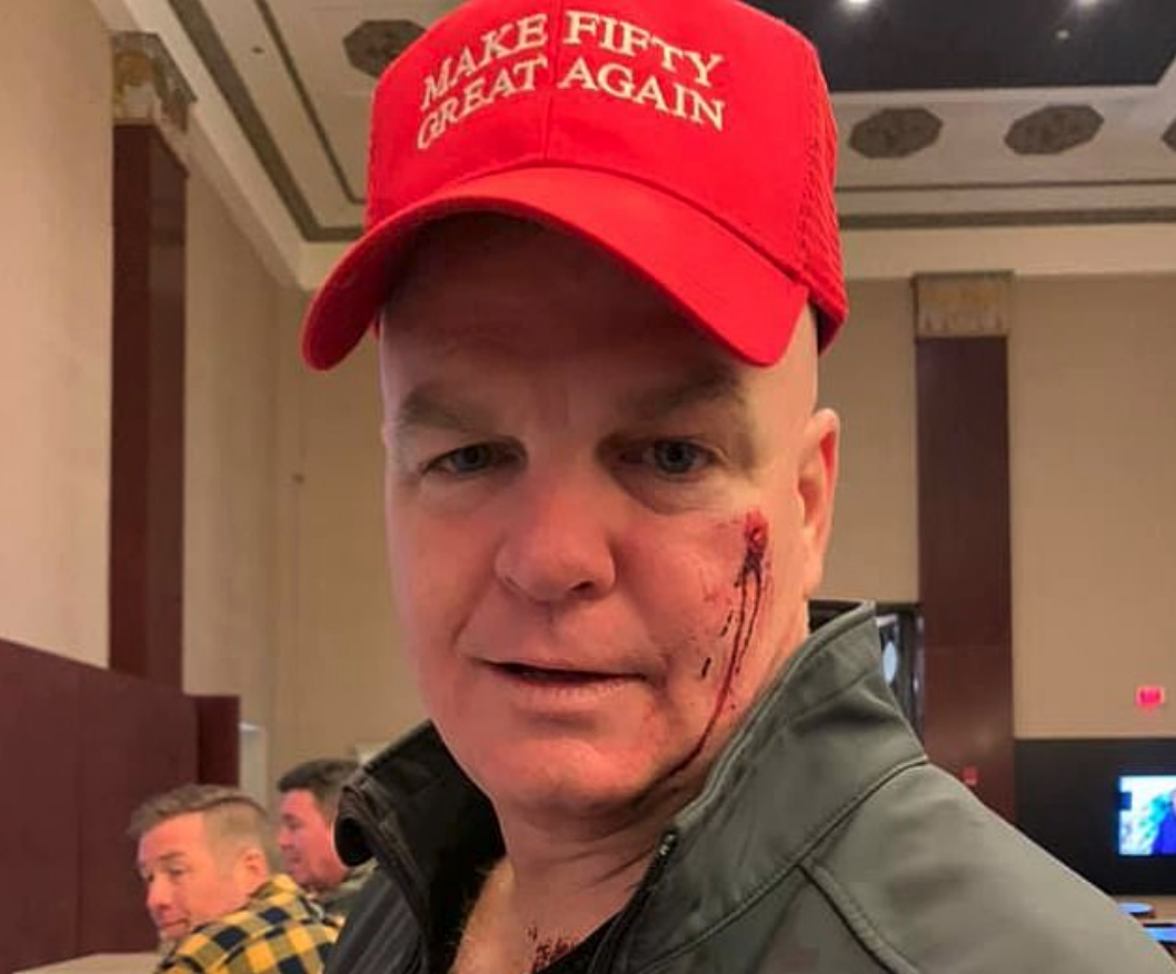 EB214945-37D4-4AF6-9D87-01AF2CD6F347 TRUMP HATER MISTAKES RED CAP FOR MAGA HAT, PUNCTURES EX-NYPD COP'S FACE [your]NEWS