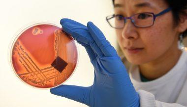 Study Sheds Light on How Silver Kills Bacteria